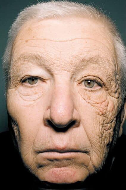 Советы для здоровой кожи: меняем образ жизни ради здоровой кожи