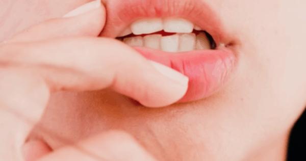 Как сохранить белизну зубов